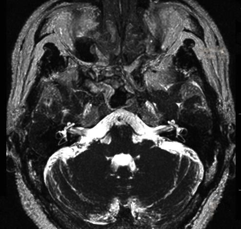 המוח והמערכת הוסטיבולרית